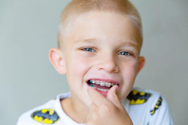 Milyen fiatalon lehet a fogszabályozó kezelést elkezdeni?