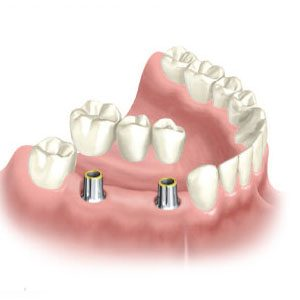 Nobel-Biocare-mutliple-dental-implants