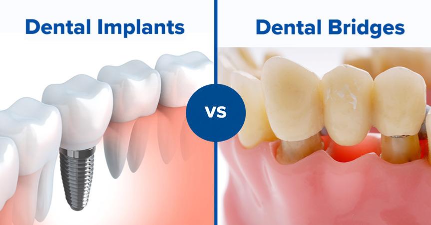 implantátum és híd összehasonlítása