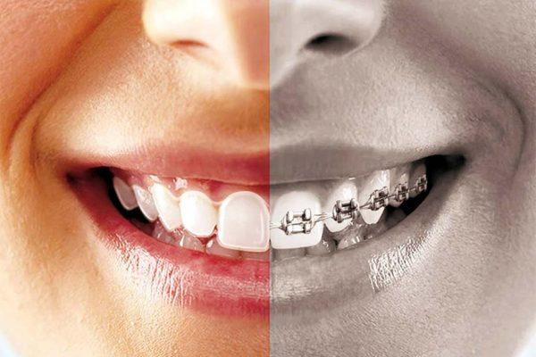 Mi is az a láthatatlan fogszabályozás?